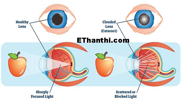 கேட்டராக்ட்டுக்கு எவ்வாறு சிகிச்சை அளிக்கப்படுகிறது? | How is cataract treated?