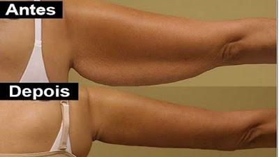 gordura braços