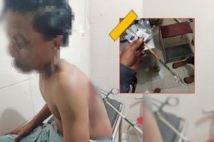 Pemanah misterius kembali beraksi di Dompu, remaja 15 tahun jadi korban
