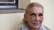 Milliókra perli Orosz Bernadettet volt barátja, aki állítólag majdnem halálra verte őt – Ezért vinné bíróság elé az ügyet a férfi
