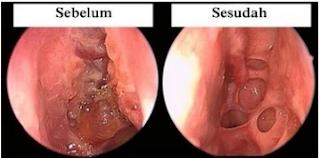 Testimoni pada cara mengobati tumor rongga hidung