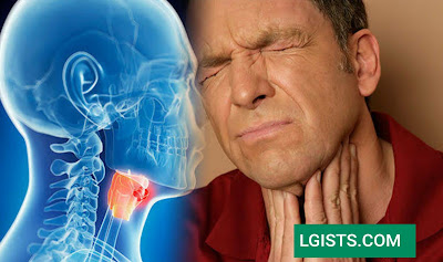 How to recognize symptoms of throat cancer.