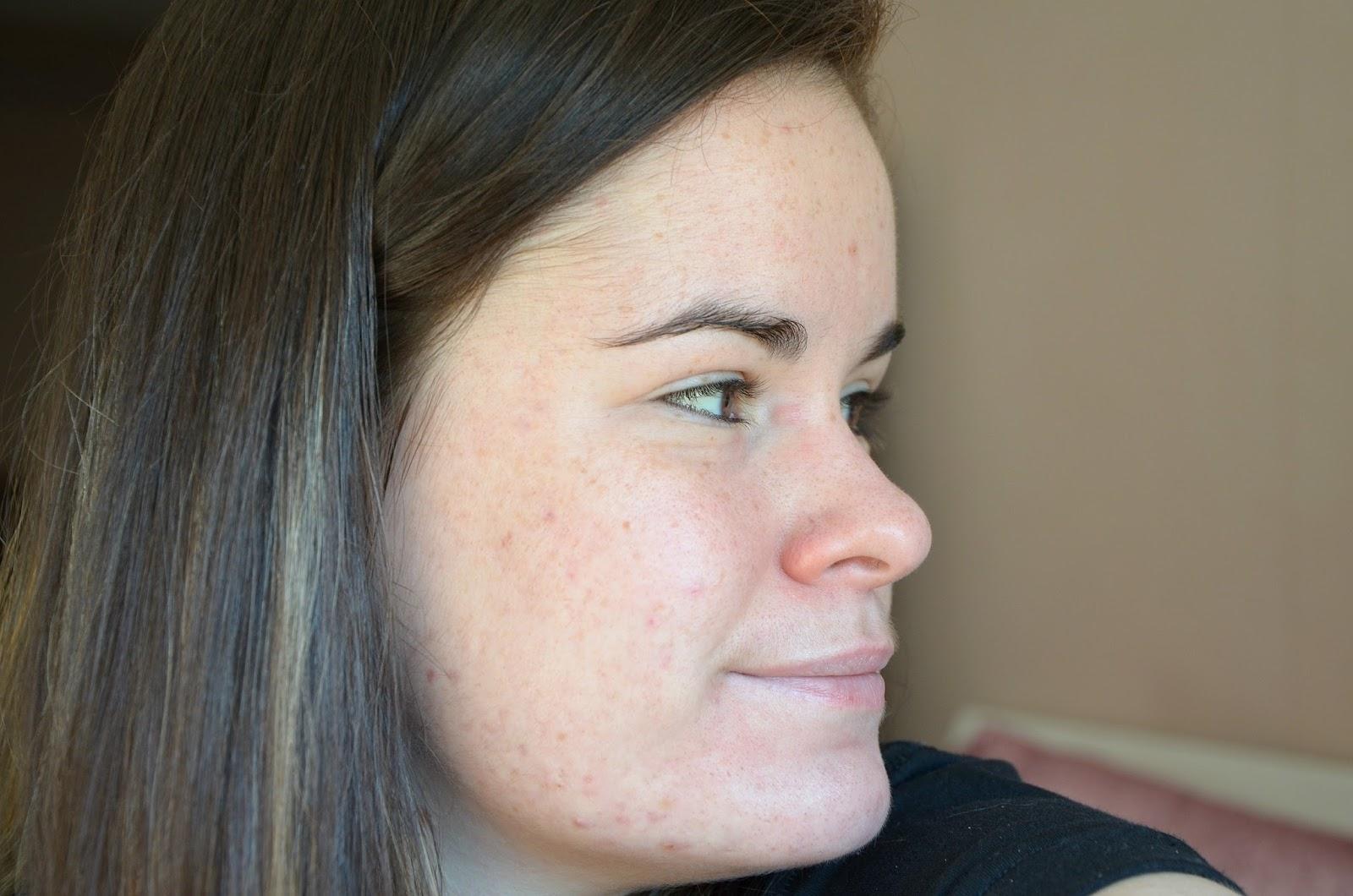 Troisième moi de traitement contre l'acné (mars 2017) côté droit