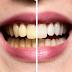 لتبيض الاسنان بدون عناية بالمنزل