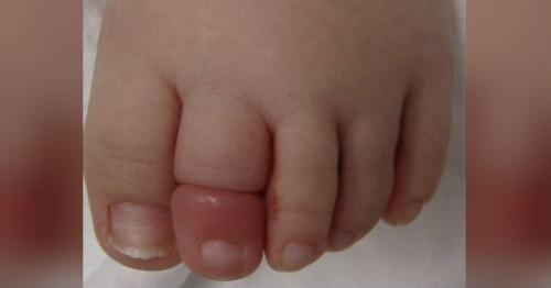 Parents! Make Sure You Regularly Check Your Baby's Foot Socks For This Painful Problem