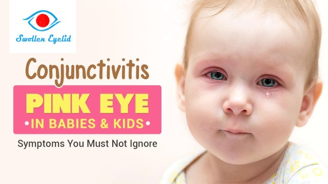 best-treatment-for-baby-pink-eye