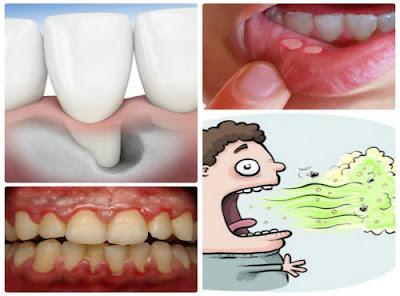 Cao răng có hại gì có ai biết không-1