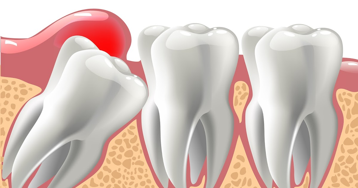 Things to Know About the Wisdom Tooth Removal Cost