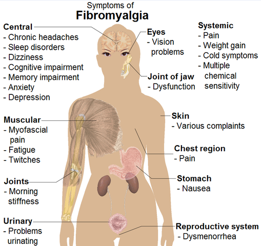 https://www.psychologytoday.com/intl/blog/evolutionary-psychiatry/201209/is-fibromyalgia-due-mineral-deficiency?