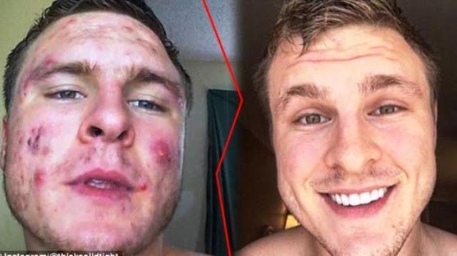 Mengganti Sarung Bantal Setiap Hari, Lihat Yang Terjadi Pada Wajah Pria 23 Tahun Ini