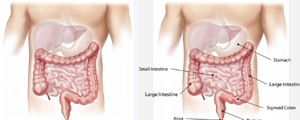 What Are The Signs Of Colon Cancer