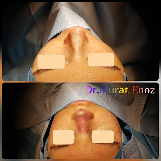 Micromotor Assisted Revision Nose Job, Micro-Motor Assisted Revision Rhinoplasty Operation,Revision Nose Aesthetic Operation in Turkey,