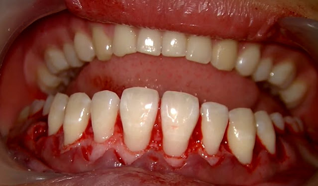 PERIODONTAL SURGERY: Aesthetic crown lengthening step by step