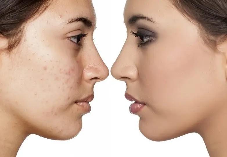 Cara Menghilangkan Bintik Merah Dan Gatal Di Wajah