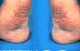 Obat eksim kering di kaki menahun paling ampuh di apotik