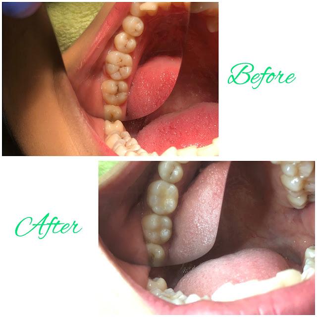 Before-After Tambal Gigi