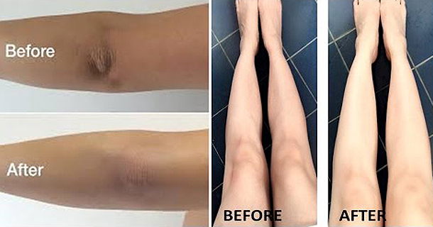 How To Remove Dark Knees And Elbows Within 3 Minutes And Get White Skin!