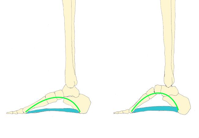 足底腱膜炎 治療 船橋