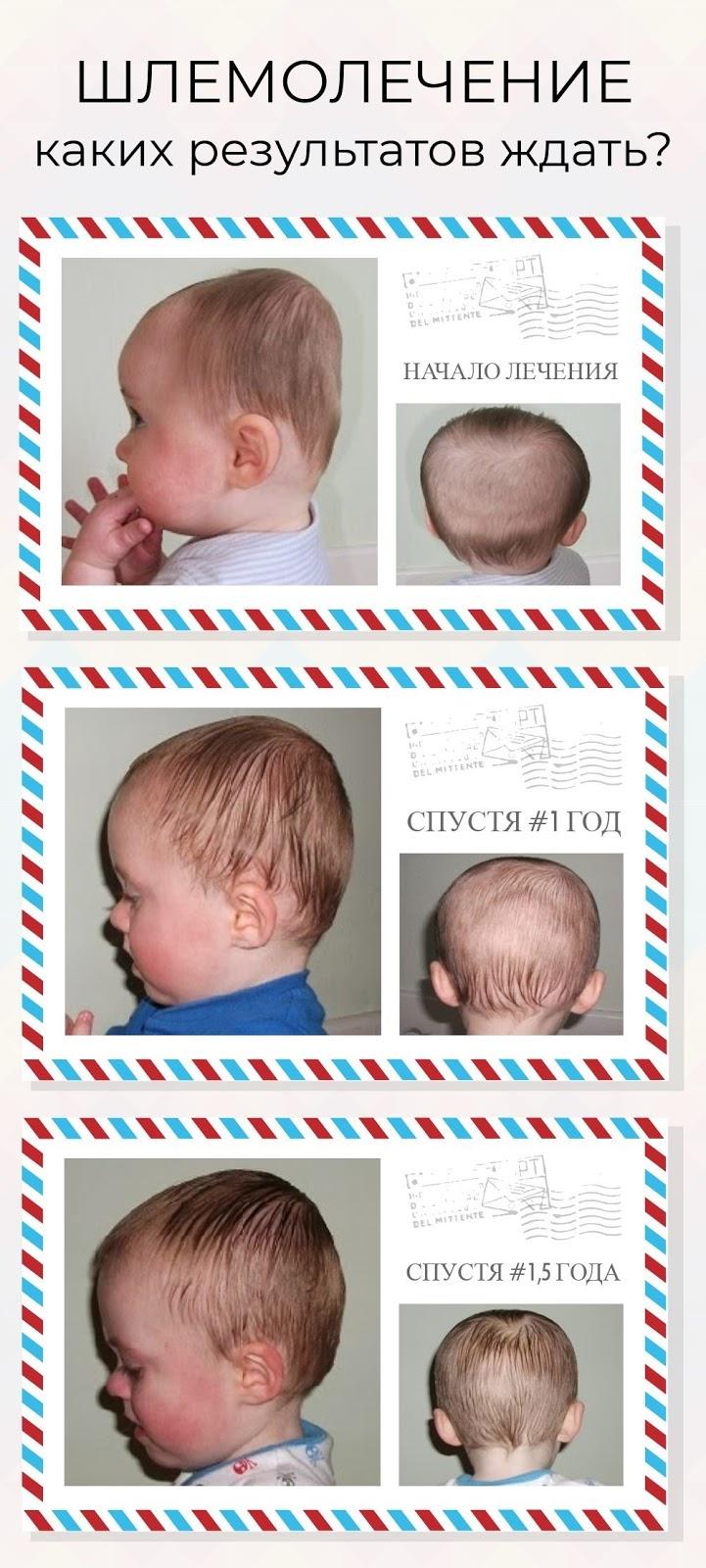 результаты лечения брахицефалии у новорожденных фото