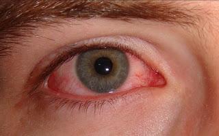 أسباب احمرار العين وعلاقة ذلك بالعدسات اللاصقة والعمل على الحاسوب