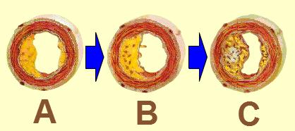 Kelainan Pada Sistem Peredaran Darah dan Cara Mengatasinya