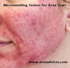 Microneedling Session for Acne Scars
