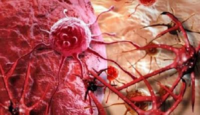 Efek Air Alkali Alami Milagros Pada 14 Macam Kanker