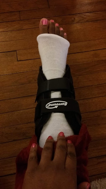 MY BROKEN ANKLE 6 MONTHS LATER