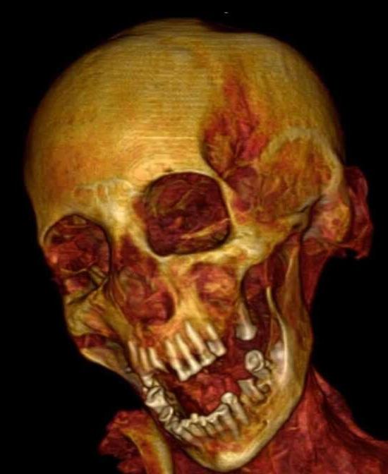 'Múmia Gritando' finalmente tem causa da morte revelada - Img tomografia