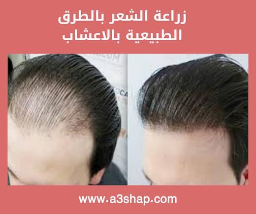 زراعة الشعر بالطرق الطبيعية بالاعشاب