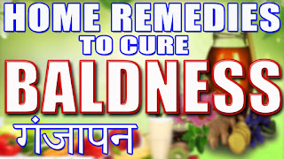Ganjapan door karne ke liye gharelu nuskhe (Baldness home remedise in Hindi/Urdu.)