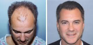 saç ekimi öncesi ve sonrası foto 3
