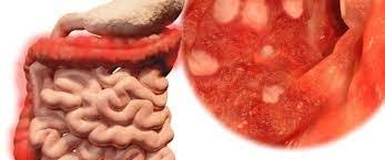 التهاب الأمعاء الغليظة التقرحيUlcerative Colitis أسبابه وكيفية علاجه