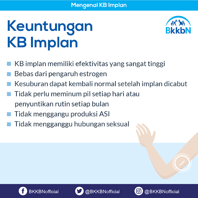 Kontrasepsi KB Implan