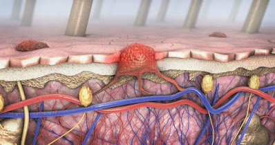 Time Interval From Melanoma Excision to Sentinel Lymph Node Biopsy Demonstrate Similar Outcomes