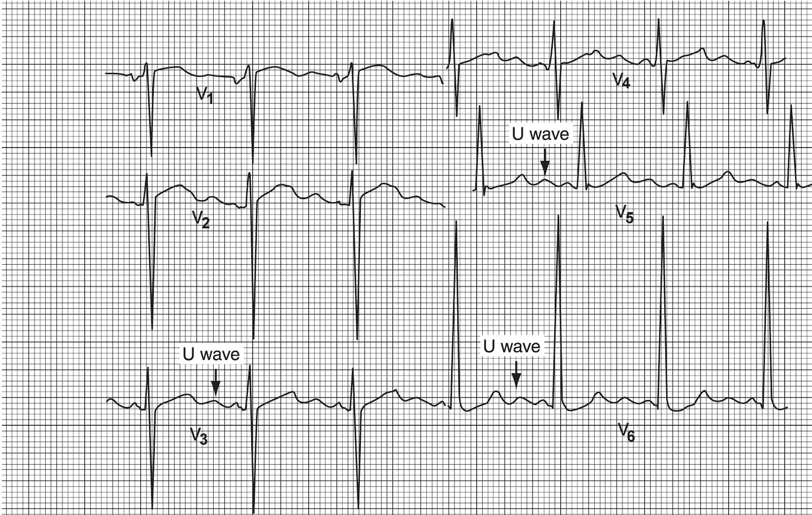 Causes Of Inverted T Waves On Ekg Auto Electrical Wiring Diagram Related With