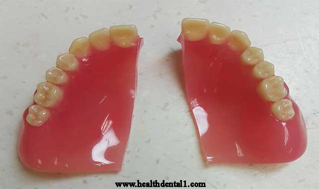 عيوب طقم الاسنان المتحرك