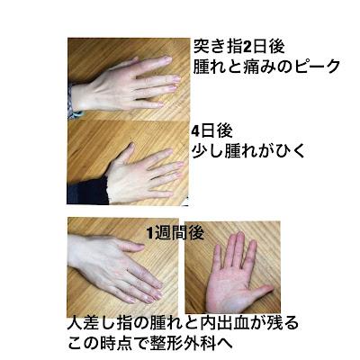 指の側副靭帯損傷