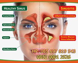 Cara Mengobati Sinusitis yang sudah Parah dengan Herbal