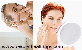 pimple and acne treatment at home