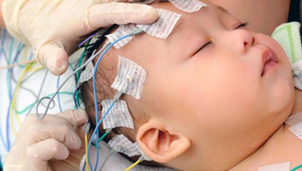 Bebekgimin epilepsi oldugunu nasil anlarim