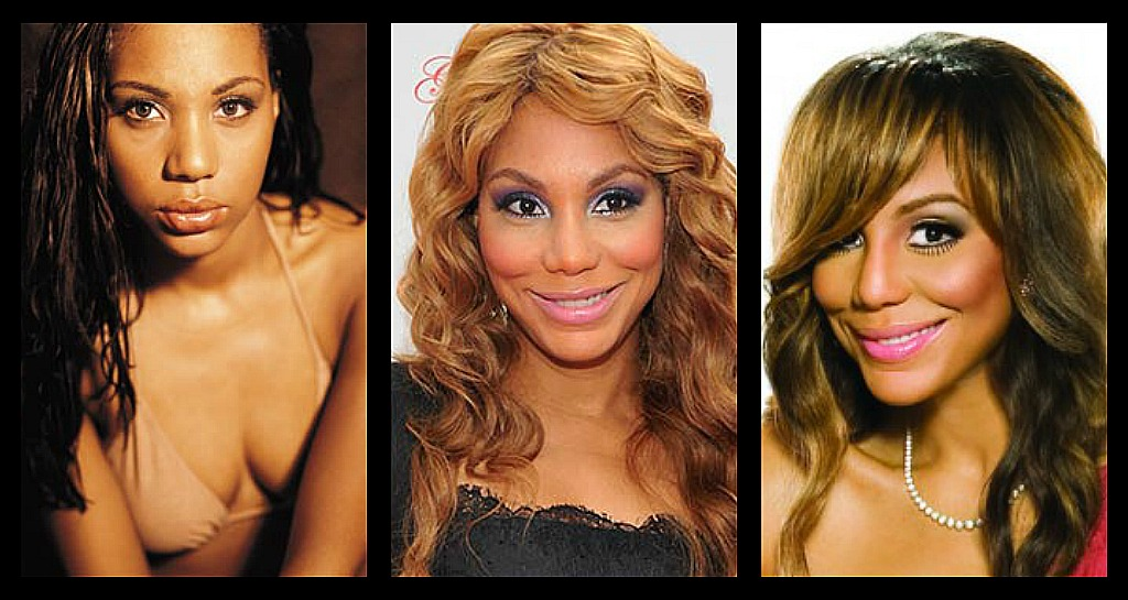Topsi News: Celebrity Plastic Surgery, Before and After