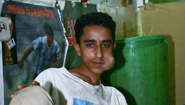 Daun Khat, Narkoba Halal Untuk Muslim?