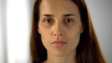 5 Cara Mudah Menghilangkan Kantong Mata