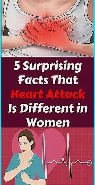 5 Surprising Facts That Heart Attack Is Different in Women