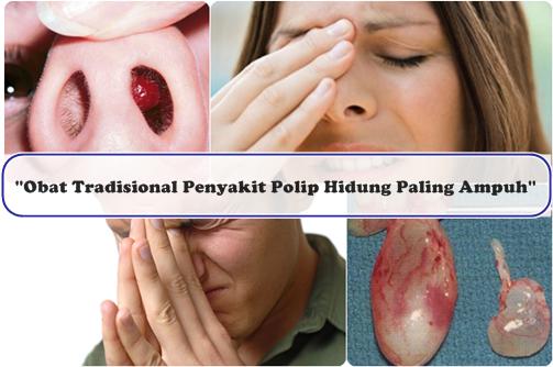 Obat Tradisional Penyakit Polip Hidung Paling Ampuh