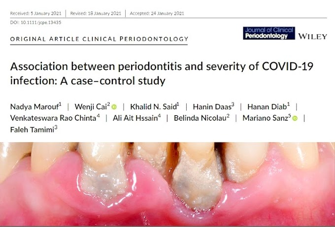 PDF: Association between periodontitis and severity of COVID‐19 infection: A case-control study - Journal of Clinical Periodontology