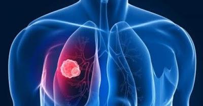 Informasi penting Mengenai Pementasan Kanker Paru-Paru ...