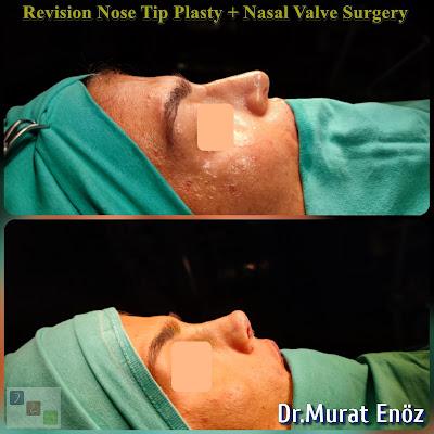 Revision Nose Tip Surgery + Nasal Valve Surgery