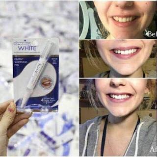 Bút trắng răng thần thánh